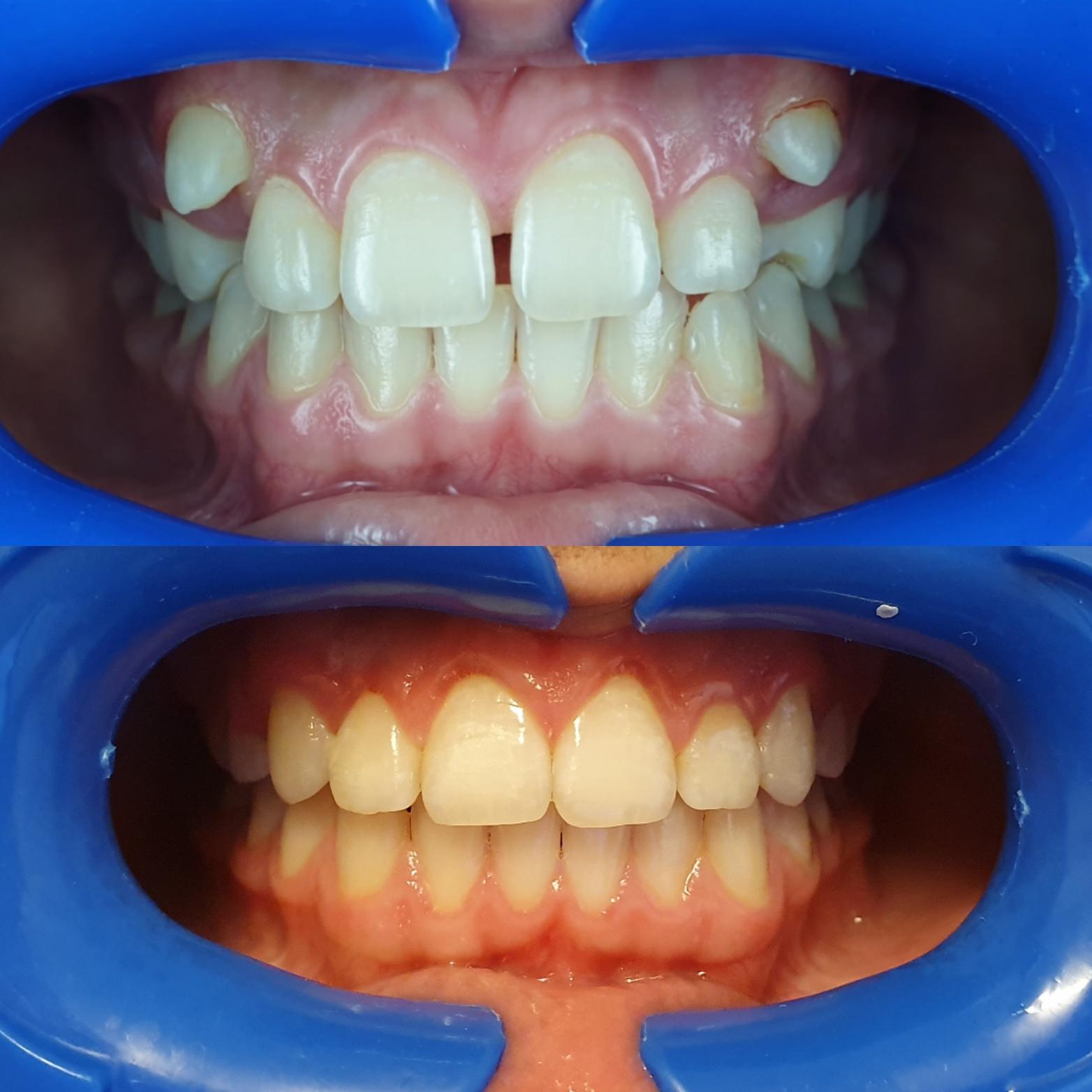 Aparat Dentar Metalic Safir Clinica Dentics Team