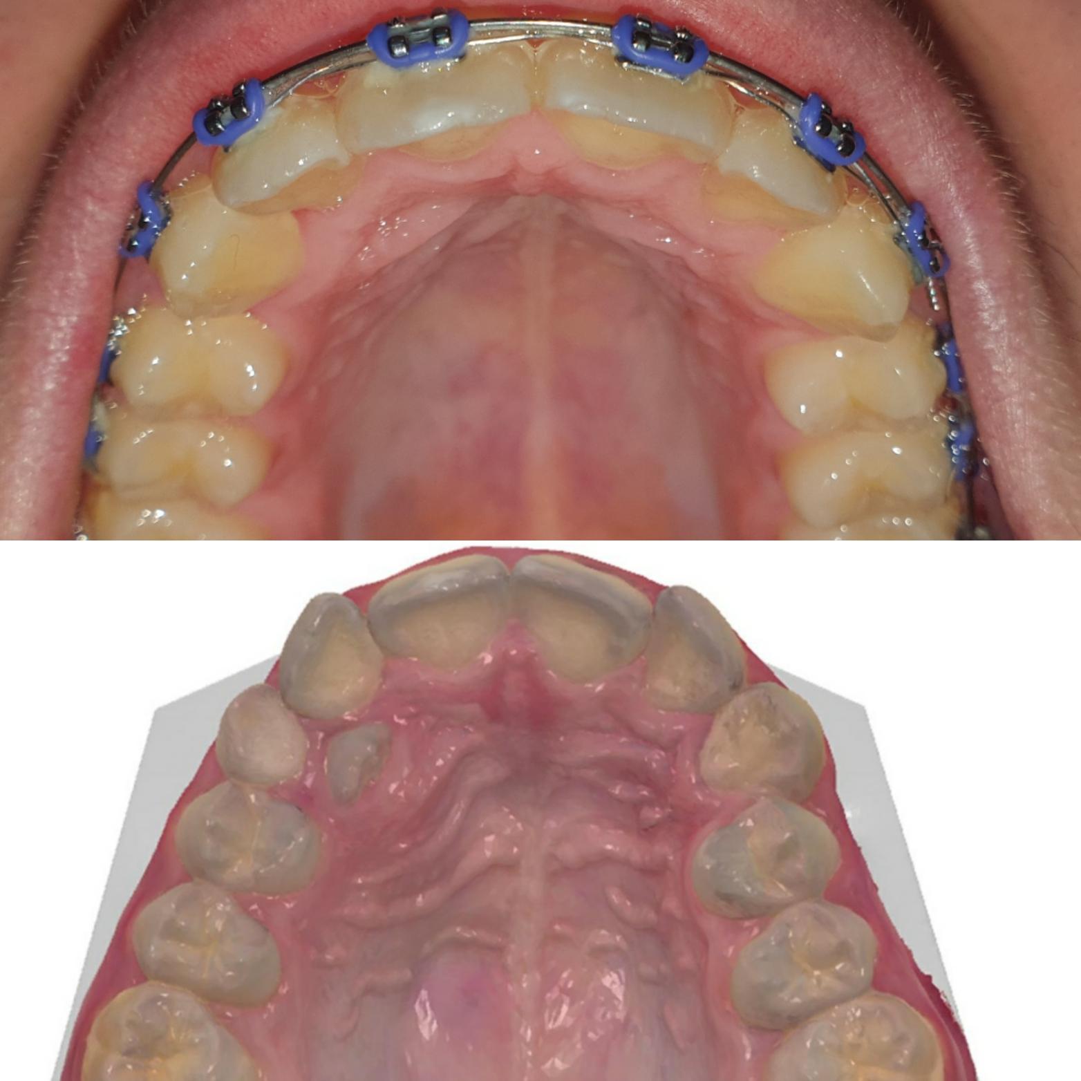Aparat Dentar in Clinica DenticsTeam