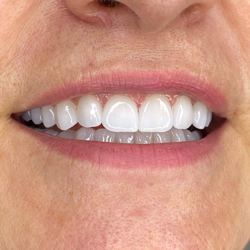 Fatete Dentare Dentics Team